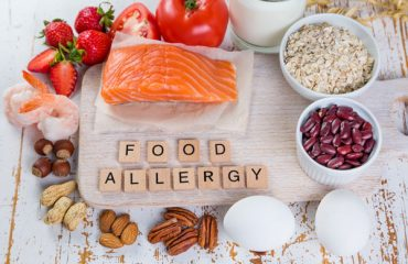 Food Allergy Outcomes Related to White and African American Racial Differences (FORWARD)